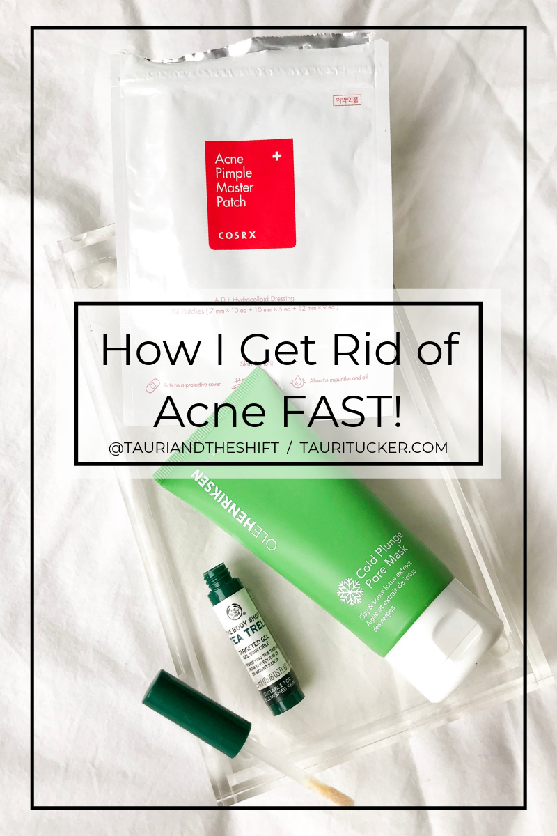 get rid of acne fast tauritucker.com my acne essentials